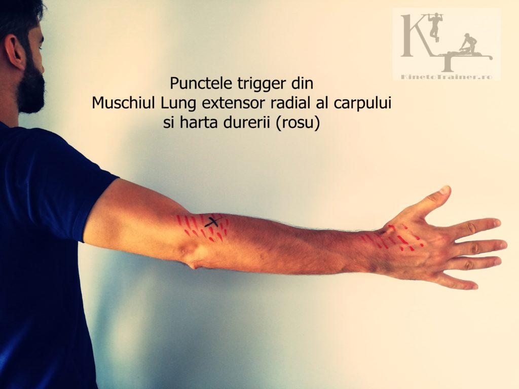Punctele trigger din Muschiul lung extensor radial al carpului (cotul tenismenului)