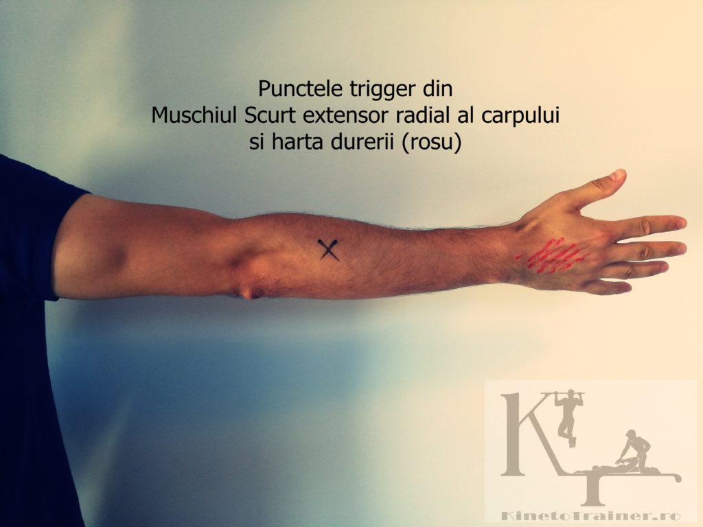 Punctele trigger din Muschiul scurt extensor radial al carpului (cotul tenismenului)