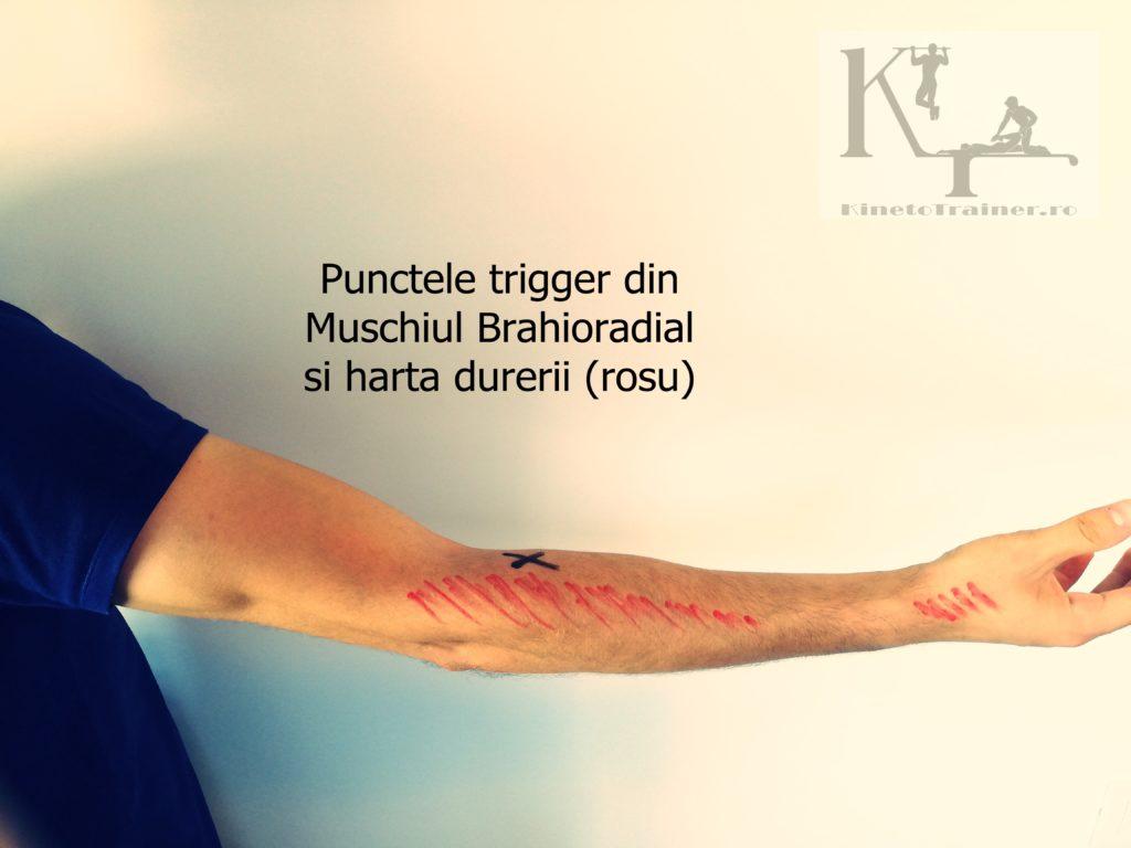 Punctele trigger din Muschiul brahioradial (cotul tenismenului)