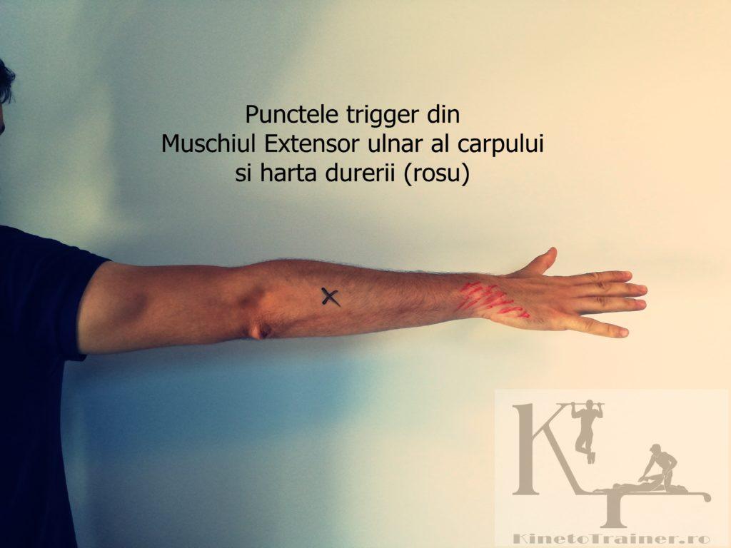 Punctele trigger din Muschiul extensir ulnar al carpului (cotul tenismenului)